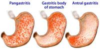 Types of gastritis