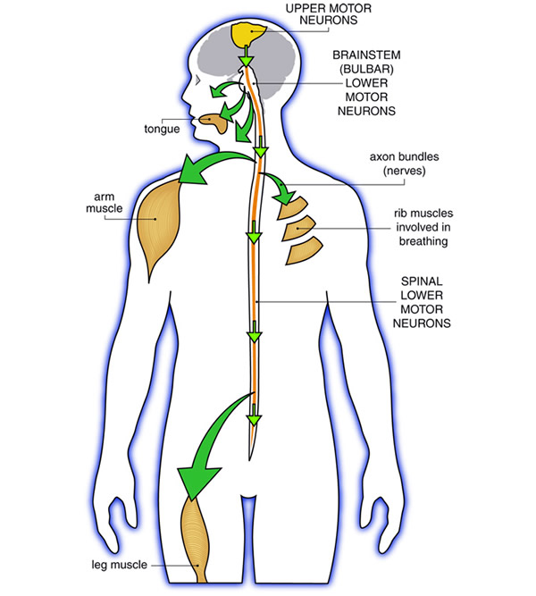 Amyotrophic lateral sclerosis als What is lower motor neuron disease