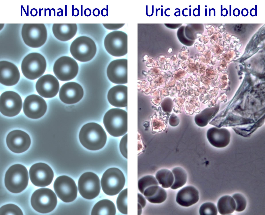 food uric acid list how to get rid of uric acid crystals will drinking water help gout