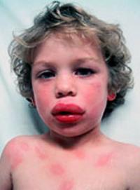 Urticaria and angioedema