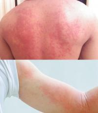 Urticaria symptoms