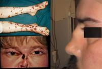 Wegener`s granulomatosis