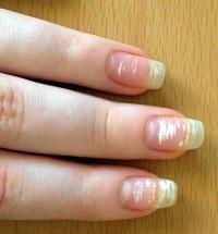 White spots on nail